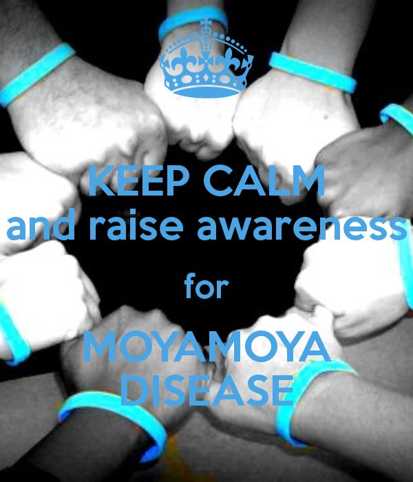 Sindrome del Moyamoya
